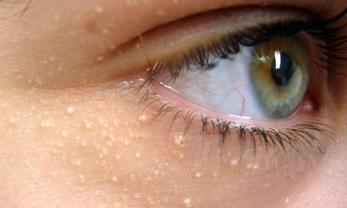 Просянка: как избавиться от милиумов, лечение и удаление милиумов на лице