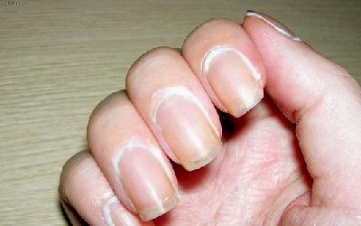 Как избавиться от заусенцев на пальцах рук