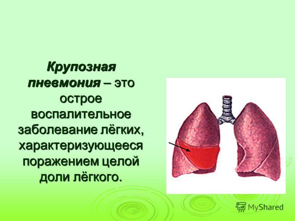 Лечение крупозной пневмонии у детей. какие стадии течения у заболевания?