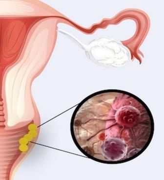 Крауроз у женщин: симптомы изменений вульвы и лечение народными методами