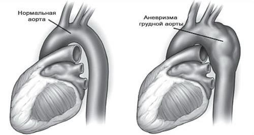Характеристика аневризмы аорты грудного отдела