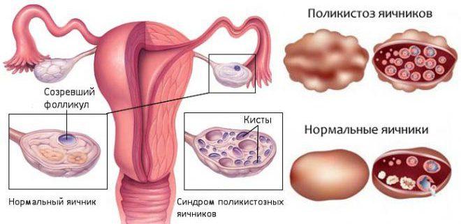 Последствия воздержания от секса для женского организма