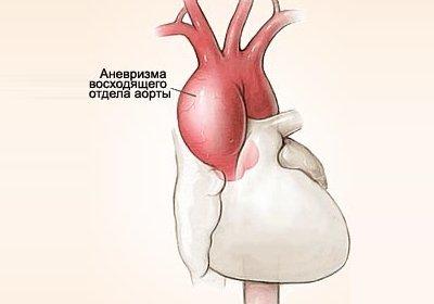 Аневризма брюшной аорты: лечение, симптомы, причины, профилактика   болезни артерий   сосудистый центр им. т.топпера