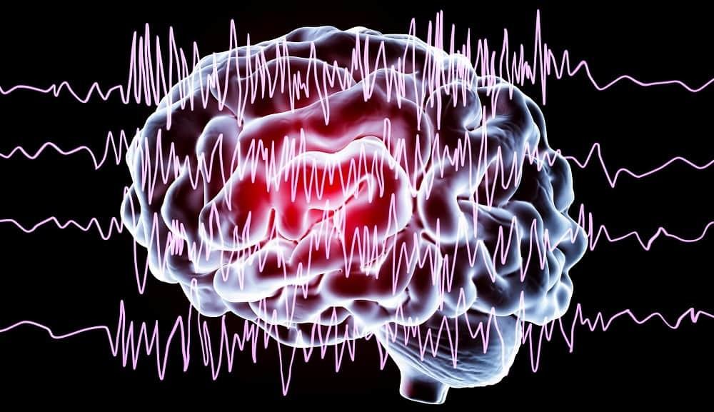 Эпилептический припадок - его причины, симптомы и первая помощь