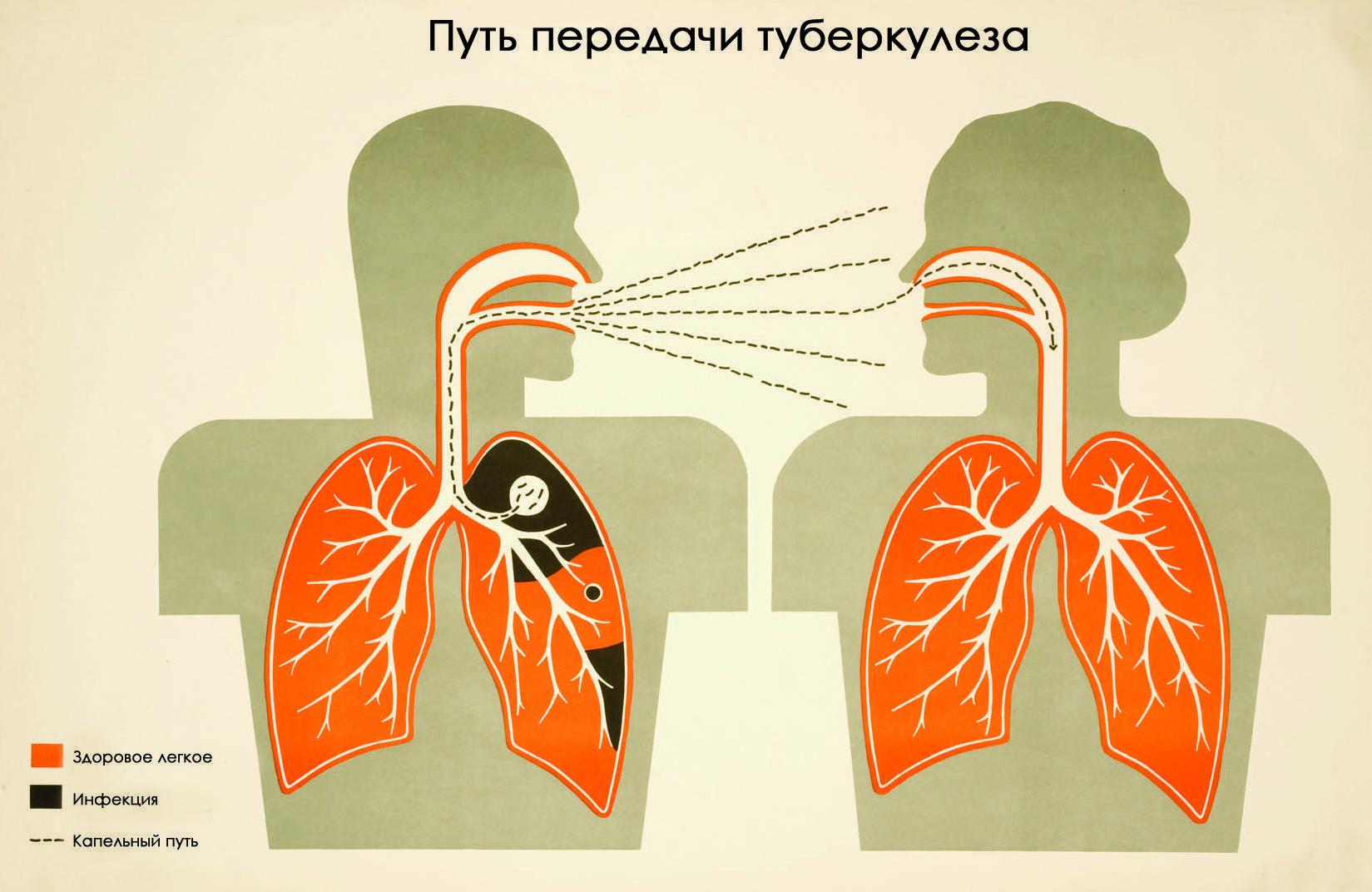 Как передается туберкулез легких от человека к человеку и риски заражения