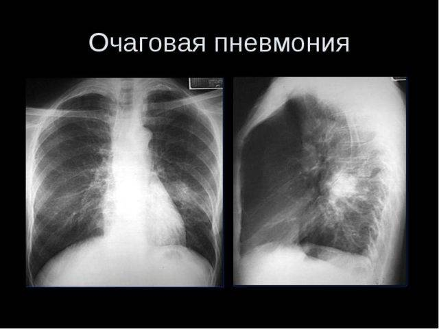Сочетание воспаления легких и туберкулеза