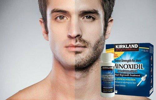 Миноксидил для волос: как действует, эффективность, фото до и после, отзывы. как применять женщинам и мужчинам, побочные эффекты, возможный вред. цена и отзывы