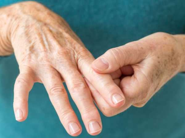 Ревматоидный артрит пальцев рук: первые симптомы, диагностика и лечение | все о суставах и связках