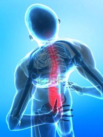 Что такое вертеброгенная цервикокраниалгия? образование заболевания на фоне шейного остеохондроза, её симптомы и лечение