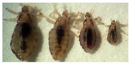 Откуда берутся вши: от чего паразиты и гниды появляются на голове, причины педикулеза