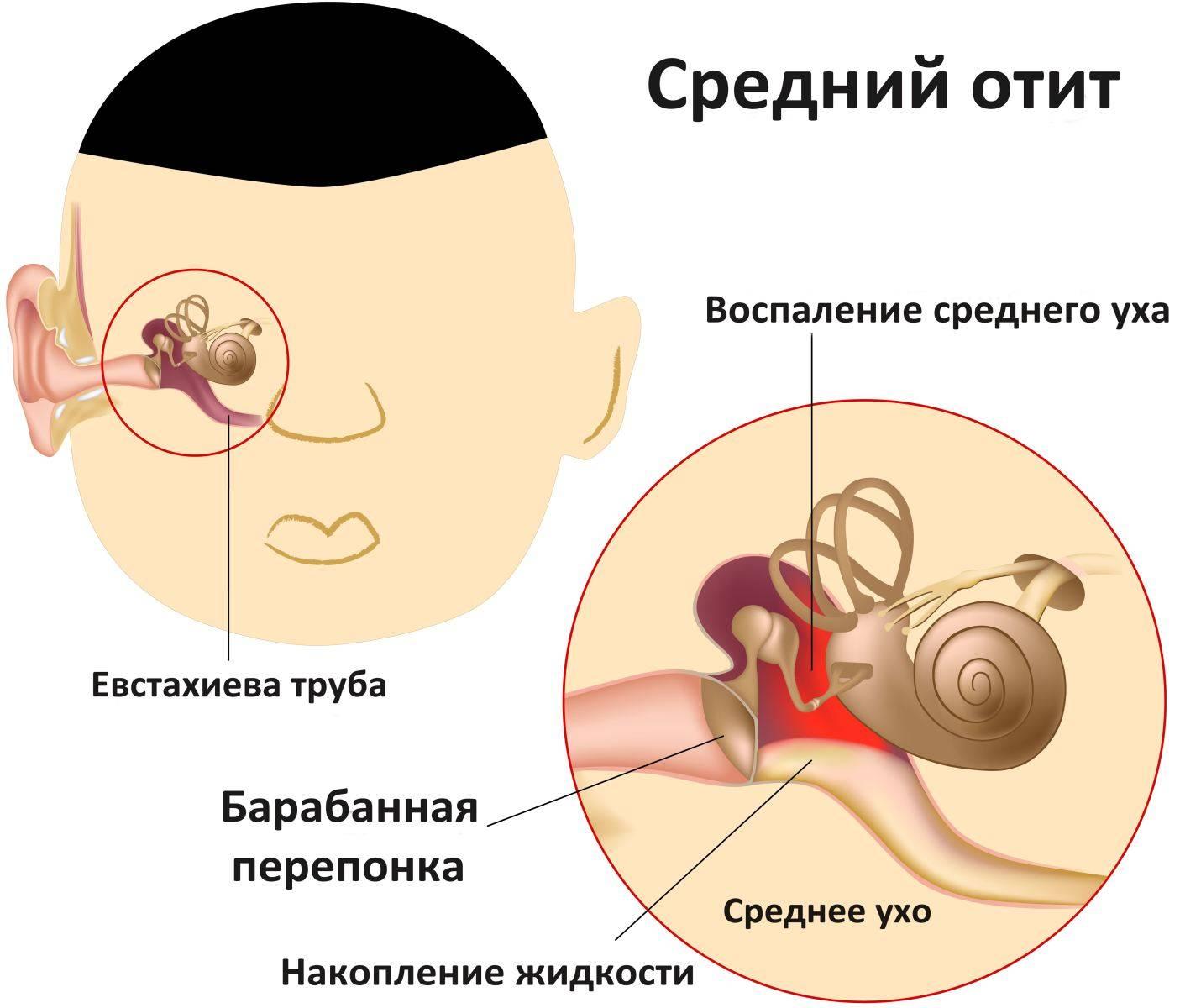 Если болит ухо у ребенка, что делать в домашних условиях: камфорное масло