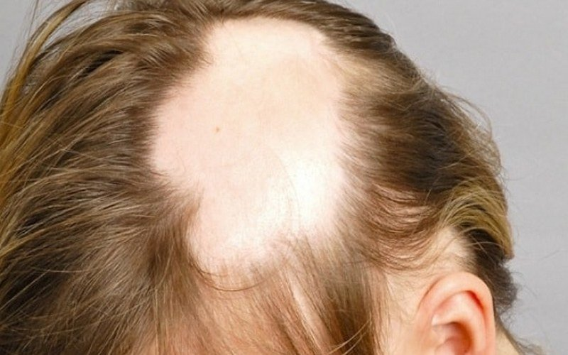 Миноксидил – инструкция по применению для волос, цена, отзывы, аналоги