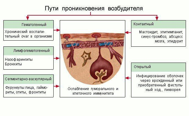 С какими заболеваниями дифференцировать менингит