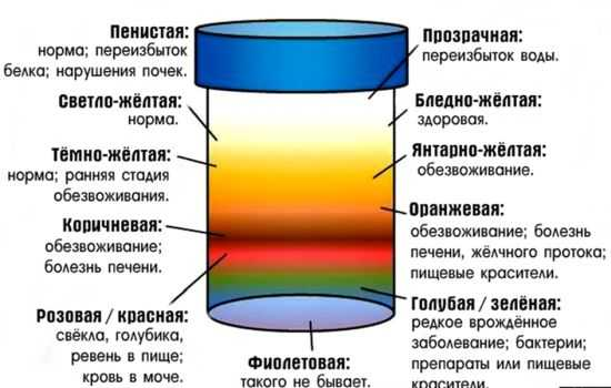 Цвет мочи: норма и отклонения, какого цвета должна быть моча у здорового человека
