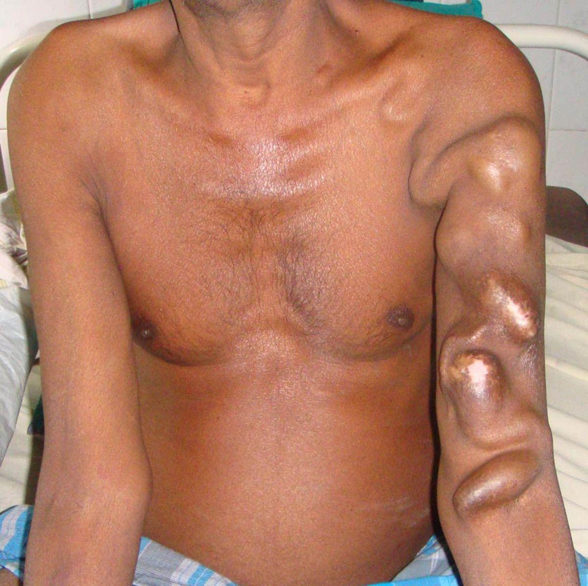 Артериовенозный свищ