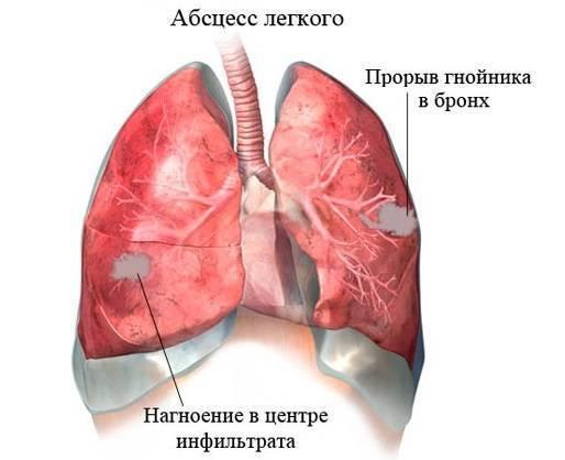 Кашель с кровью: причины, что это может быть, при простуде и пневмонии, у курильщика, у ребенка, если симптом проявляется по утрам, что делать