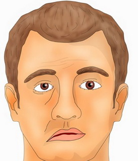 Паралич (парез) лицевого нерва