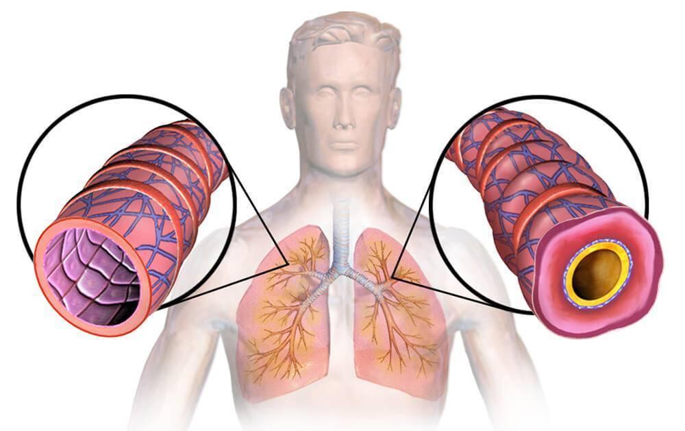 Неотложная помощь при бронхиальной астме — алгоритм действий