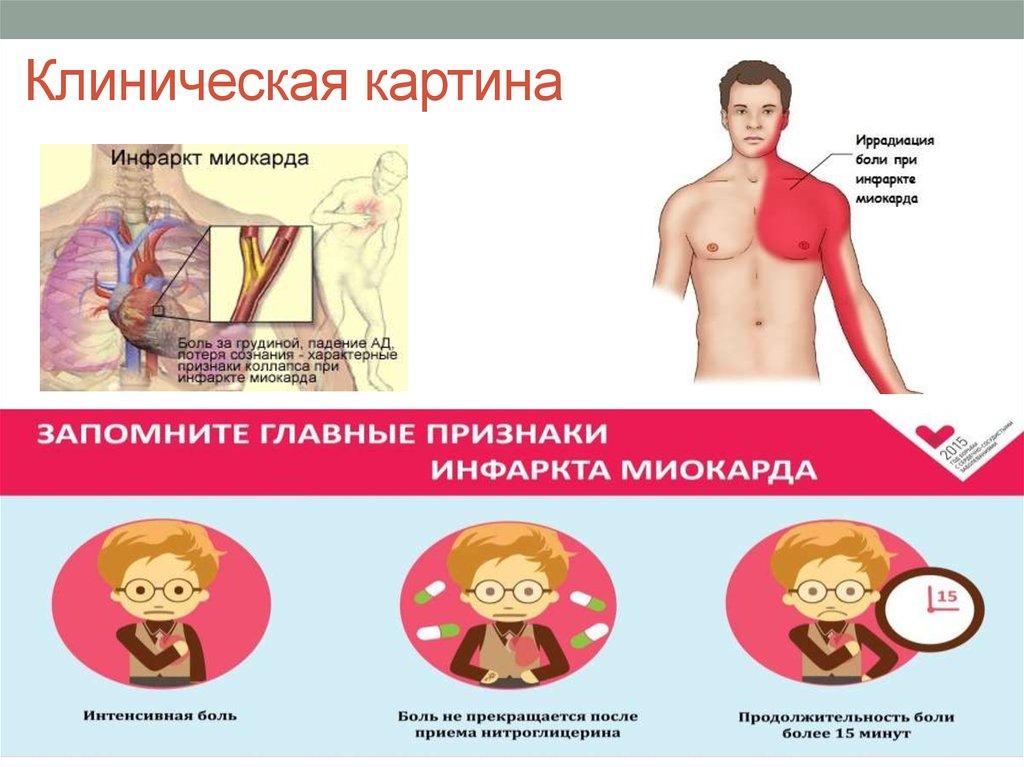 Первые признаки сердечного приступа у женщин и мужчин - как оказать доврачебную помощь, лечение и последствия