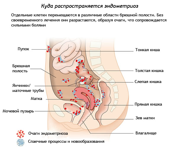 Аденомиоз матки – диффузный и узловой, симптомы и признаки, алгоритм лечения,  народные средства