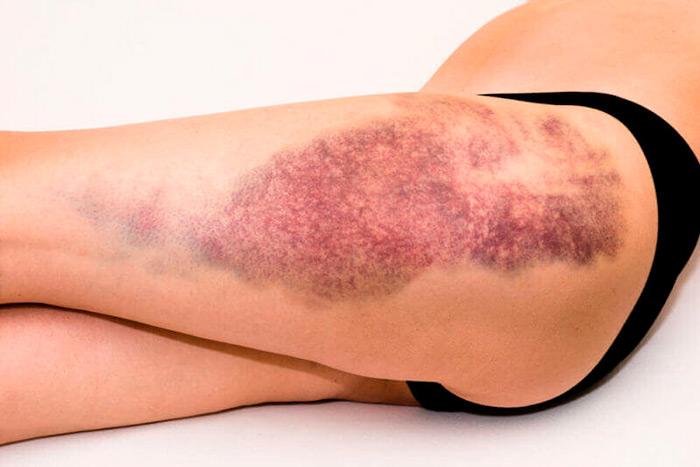 Кровоподтеки: как возникают – травматические и патологические, клиника, как лечить