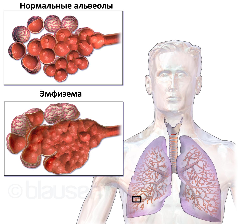 Диффузный пневмосклероз легких – что это такое, сколько живут?