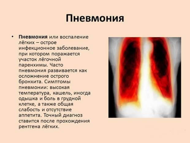 Симптомы и лечение прикорневой пневмонии