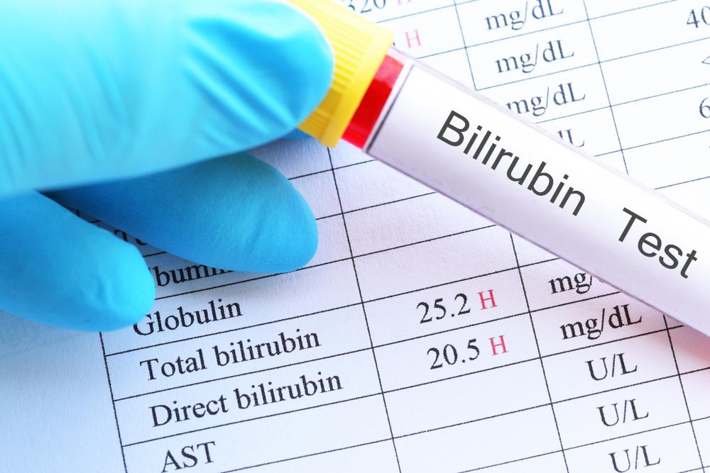 Правила диеты при повышенном билирубине, а также списки полезных и вредных продуктов