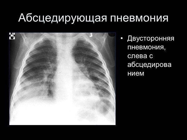Все о скрытой (бессимптомной, вялотекущей) пневмонии у детей. легко ли ее обнаружить?