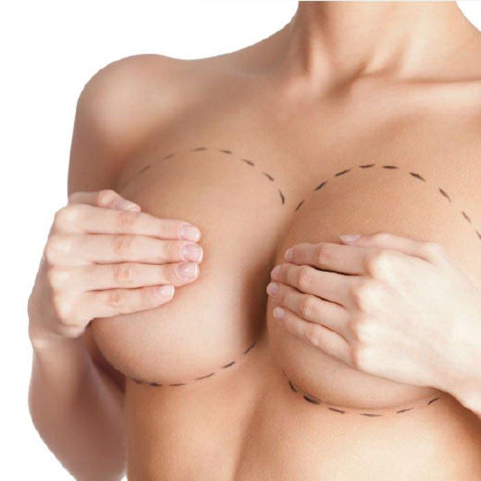 Как проводится маммопластика: виды операции, реабилитация после увеличения, коррекции груди, результаты