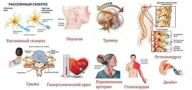 Почему немеет голова и бегают мурашки: причины онемения, симптомы, лечение