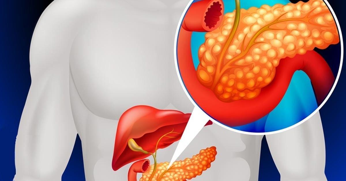 Воспаление поджелудочной железы: симптомы и лечение. диета при воспалении поджелудочной железы