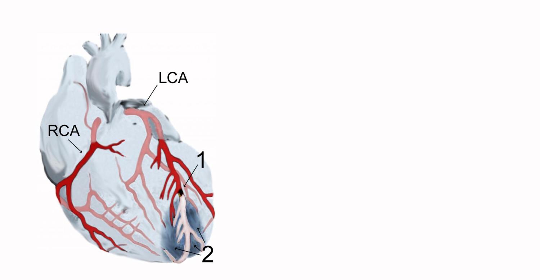 Причины инфаркта миокарда: основные причины возникновения и развития