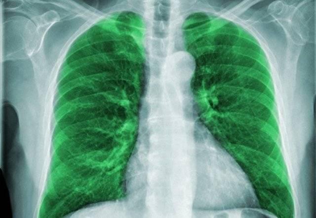 Левосторонняя пневмония: что это и сколько лечится у взрослых и детей