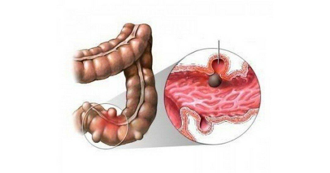 Дивертикулез толстого кишечника - симптомы и лечение, диета, осложнения | здрав-лаб