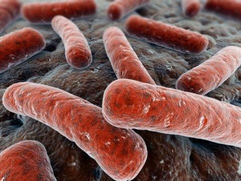 Первые проявления туберкулёза: с чего всё начинается?