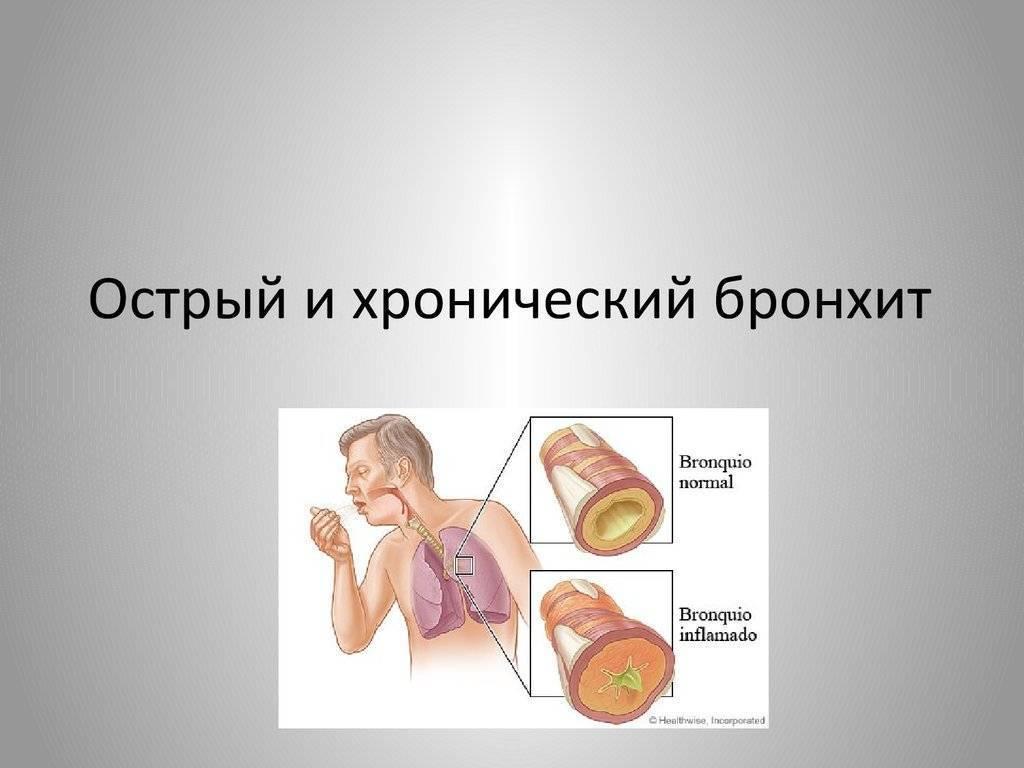 Хронический бронхит у взрослых: признаки, симптомы хронического обструктивного бронхита, лечение