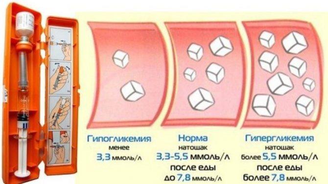 Норма сахара в крови у женщин после 40-50-60-70 лет