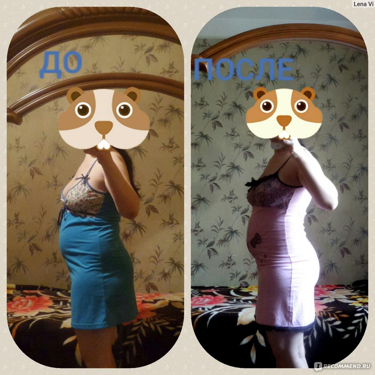 Метформин для снижения веса. метформин для похудения – отзывы.