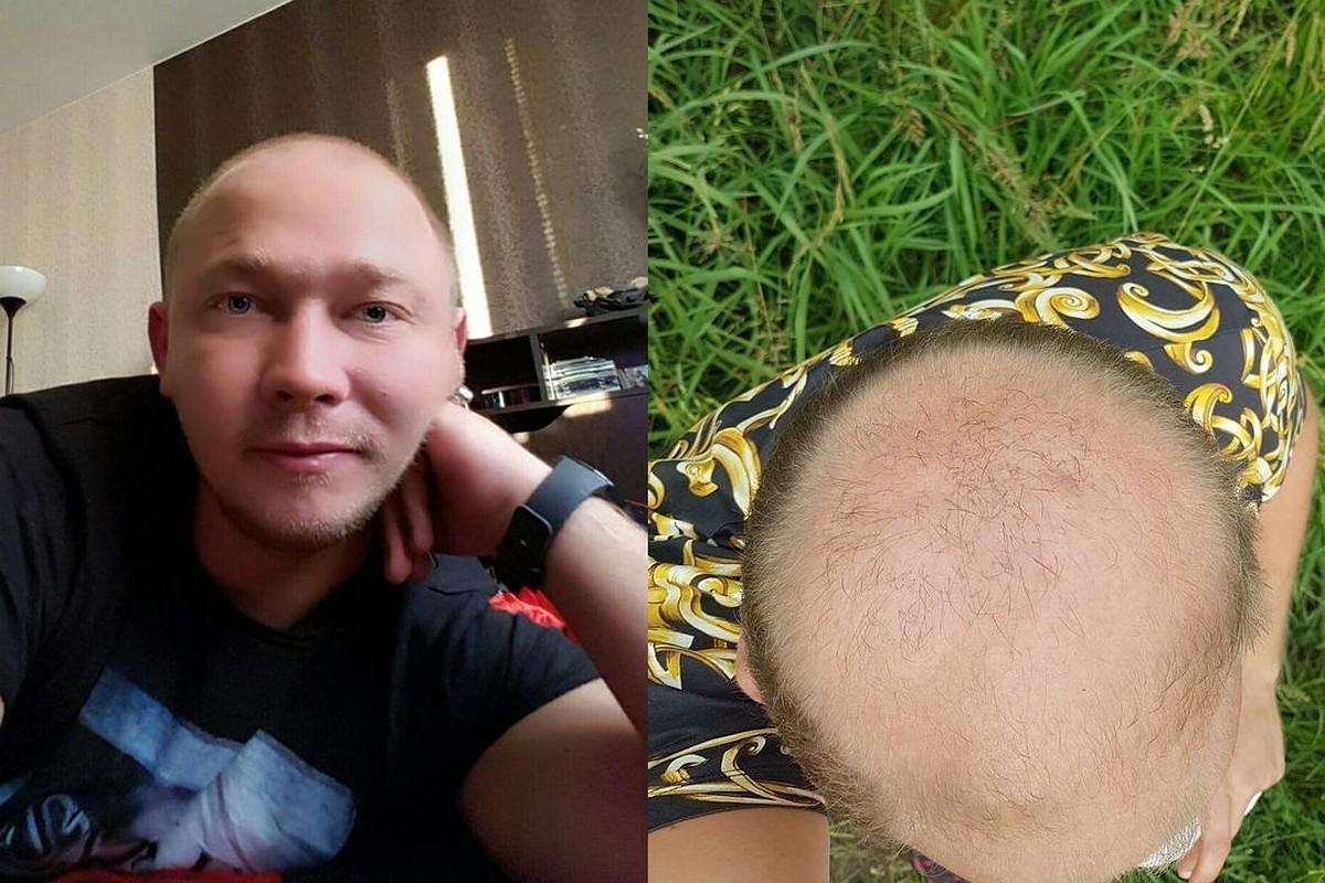 Причина и лечение выпадения волос у мужчин