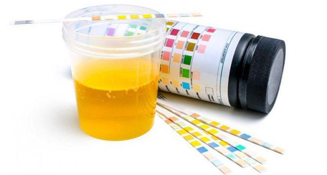 Норма и причины повышенных кетоновых тел в моче у ребенка