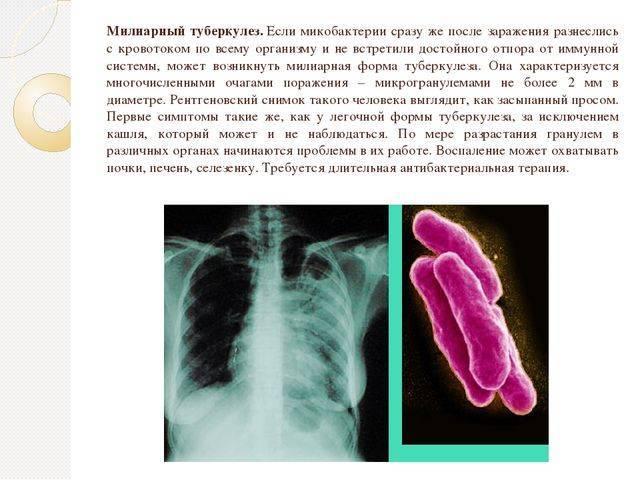 Повторное развитие туберкулеза