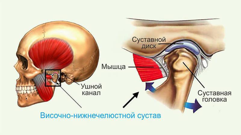 Симптоматика, обследование и прогноз при дисфункции височно-челюстного сустава