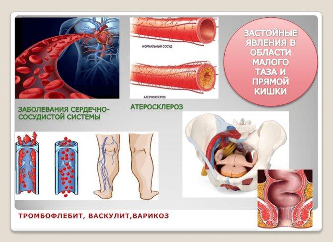 Зуд в заднем проходе у женщин: причины, методы лечения