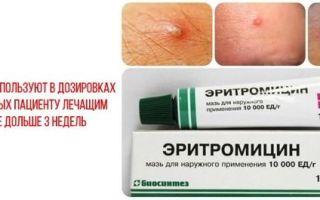 Эритромициновая мазь - инструкция по применению и противопоказания