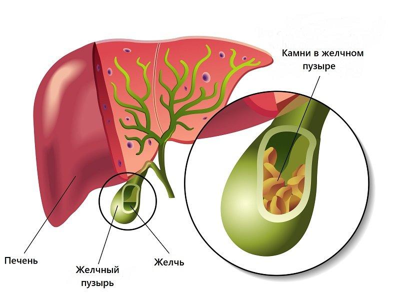 Какой должна быть диета при густой желчи в желчном пузыре?