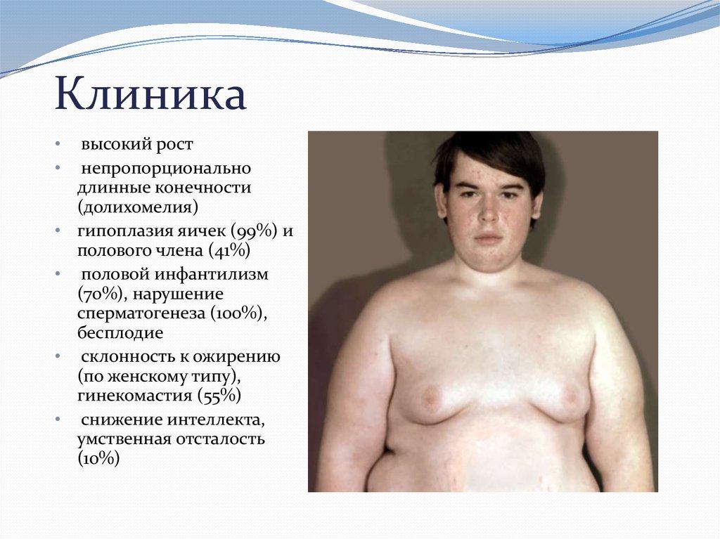 Инфантильные половые органы. недоразвитие половых органов (инфантилизм). половой инфантилизм: причины