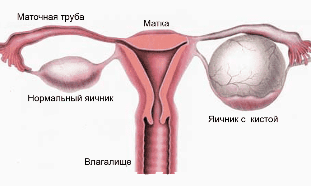 Киста правого яичника: что это такое и как ее лечить