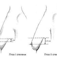 Из за чего обвисает грудь