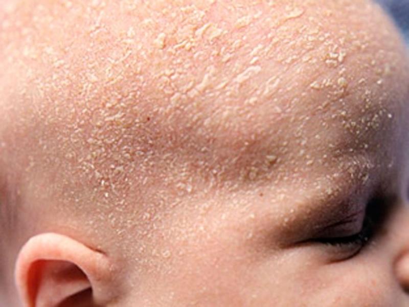 Себорейный дерматит у грудничка, новорожденных (34 фото): лечение волосистой части головы